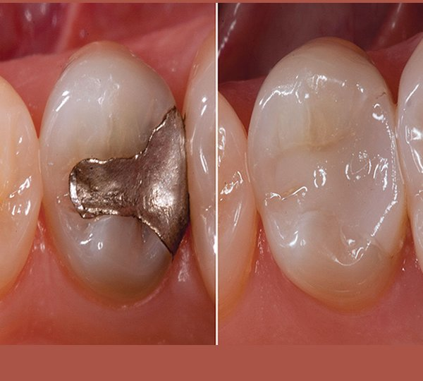 aesthetic dentistry-tooth